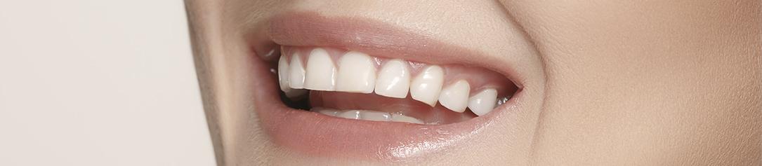 imagem-clareamento-dentário